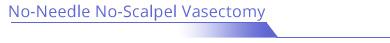 No-Needle No-scalpel Vasectomy